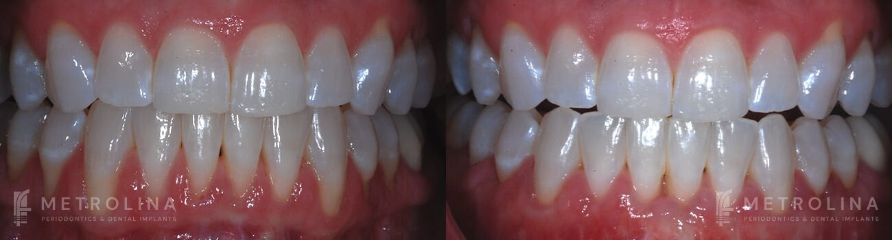 metrolina-periodontics-charlotte-allograft-tissue-graft-patient-1-1