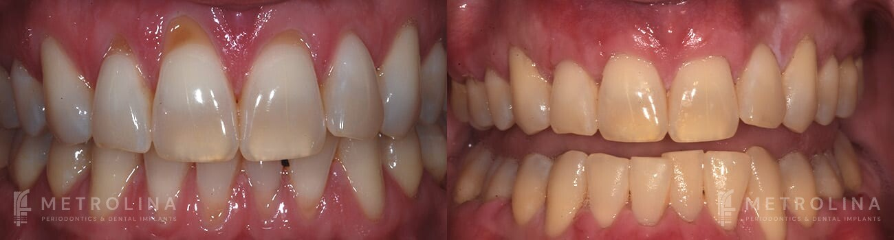metrolina-periodontics-charlotte-allograft-tissue-graft-patient-2-1