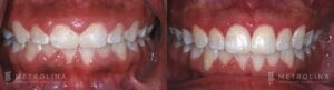 metrolina-periodontics-charlotte-crown-lengthening-patient-1-1-1