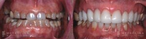 metrolina-periodontics-charlotte-crown-lengthening-patient-3-1-1