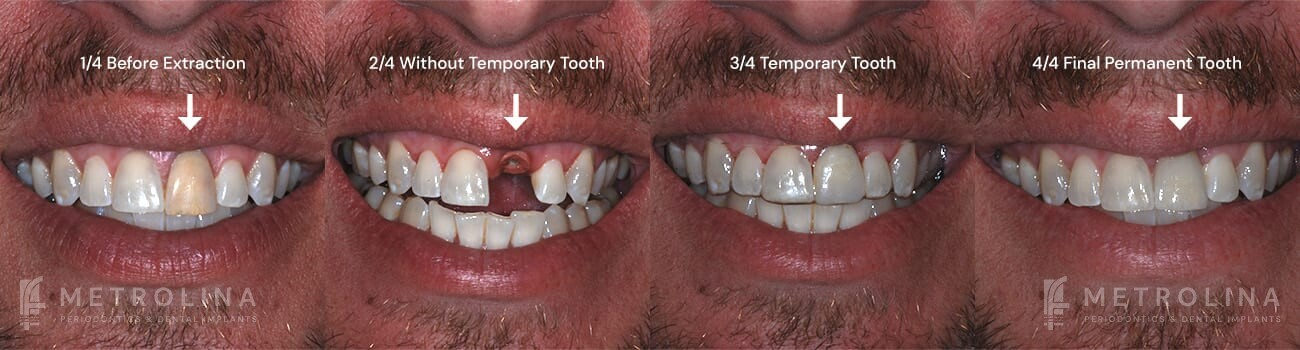 metrolina-periodontics-charlotte-dental-implants-patient-1-1