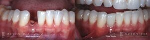 metrolina-periodontics-charlotte-dental-implants-patient-2-1