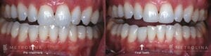 metrolina-periodontics-charlotte-dental-implants-patient-2-2