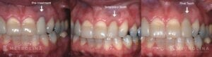 metrolina-periodontics-charlotte-dental-implants-patient-3-1