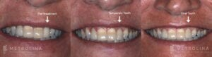 metrolina-periodontics-charlotte-dental-implants-patient-3-2
