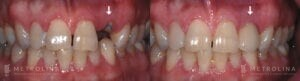 metrolina-periodontics-charlotte-dental-implants-patient-4-1