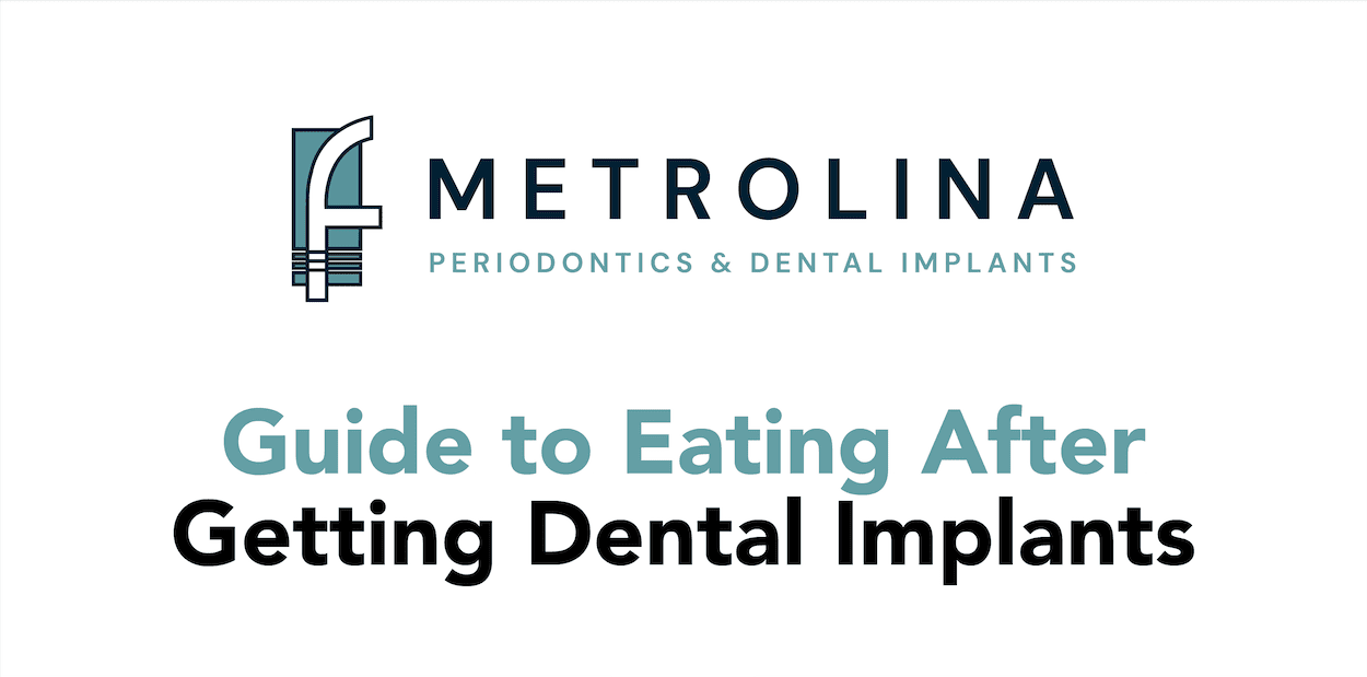 Guide to Eating After Getting Dental Implants